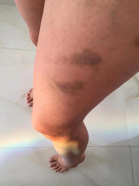 dj ivis agressao mulher espanca 6 ©JAIRZINHOCDS